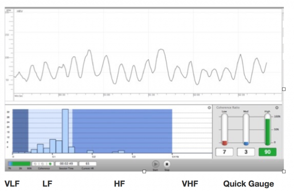 Anatomy of an HRV Graph